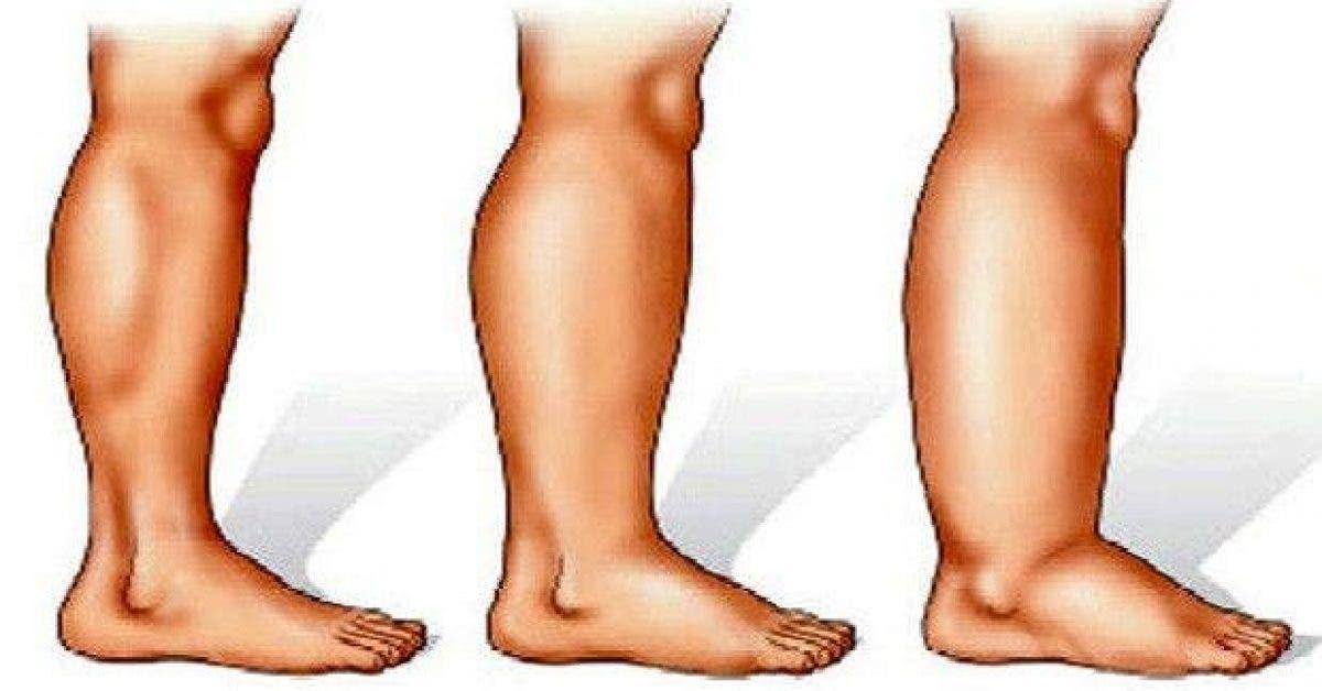 les 16 meilleures solutions pour vous debarrasser des jambes enflees 1