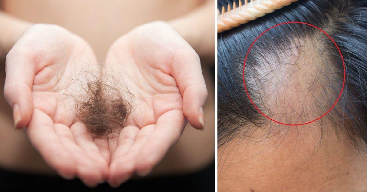 les-aliments-qui-favorisent-la-chute-des-cheveux