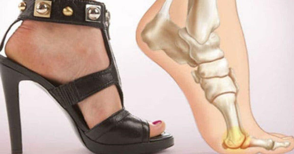les dangers des talons et comment ils affectent le corps 1