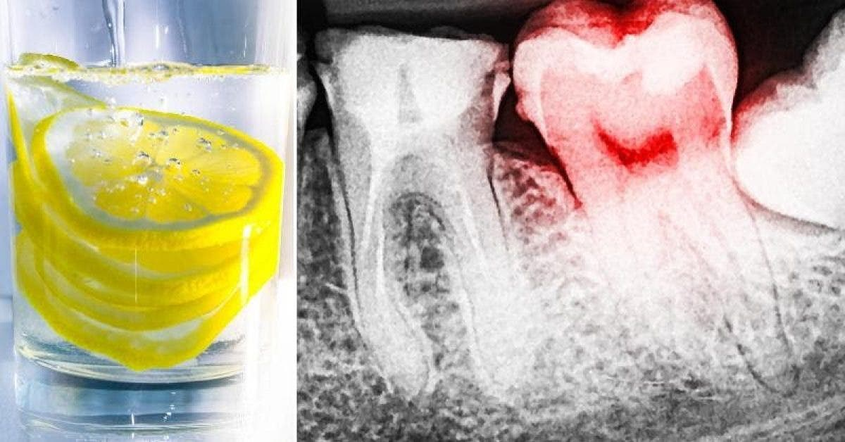 Les dentistes avertissent les gens qui aiment boire de l'eau au citron