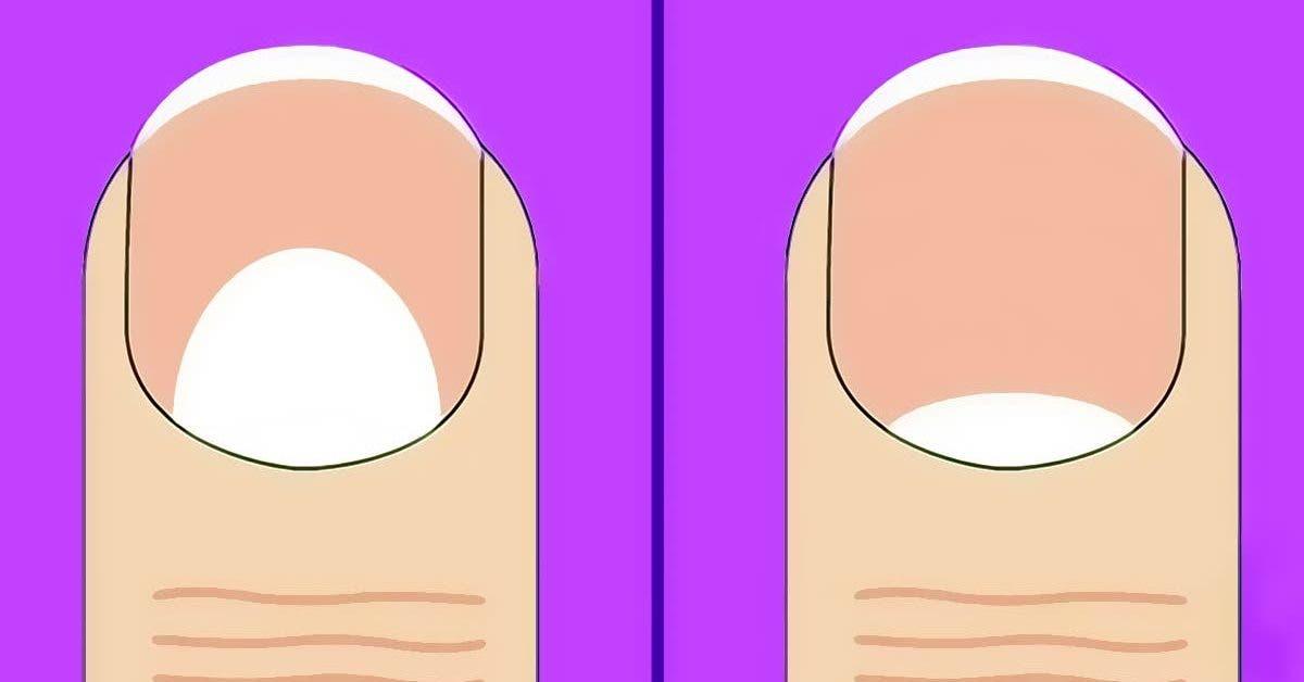 les-lunules-de-vos-ongles-peuvent-indiquer-ces-5-problemes-de-sante