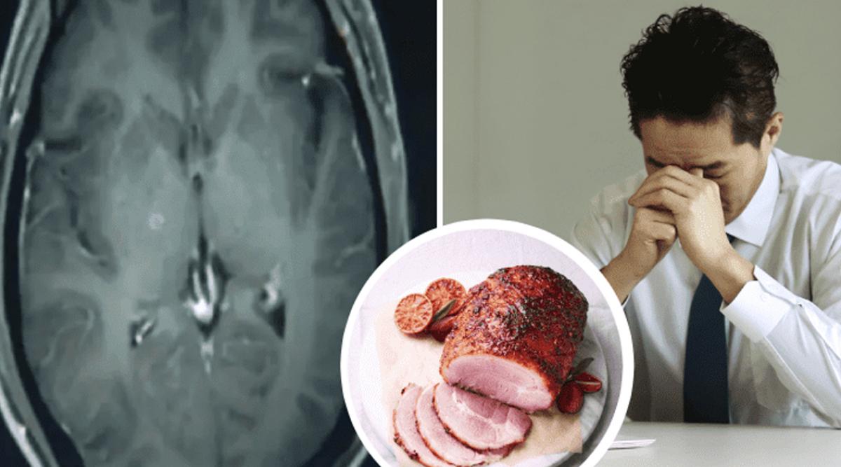les-medecins-ont-decouvert-plus-de-700-vers-dans-le-cerveau-la-poitrine-et-les-poumons-dun-homme-qui-avait-mange-du-porc