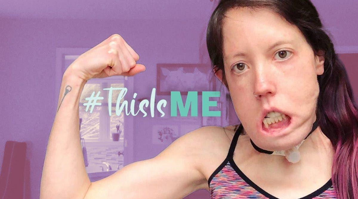 les-medecins-pensaient-que-cette-femme-ne-pourrait-jamais-parler-ou-marcher-a-cause-de-sa-maladie-maintenant-elle-est-prof-de-fitness
