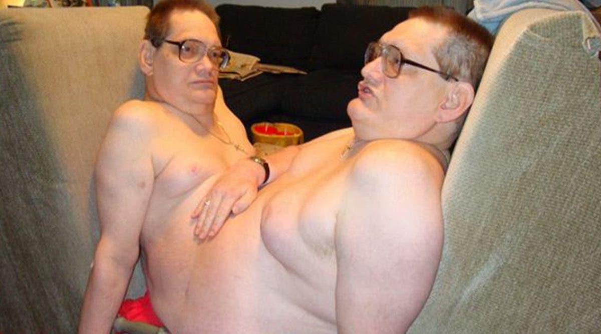 les-plus-vieux-jumeaux-siamois-au-monde-sont-morts