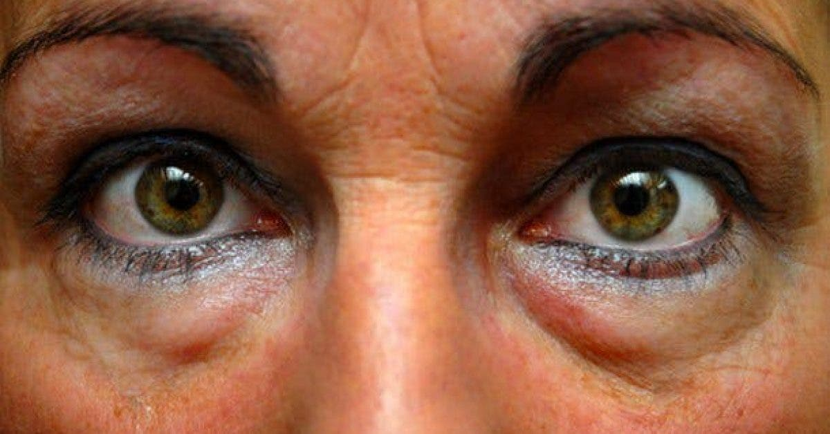 les remedes contre les poches sous les yeux 1