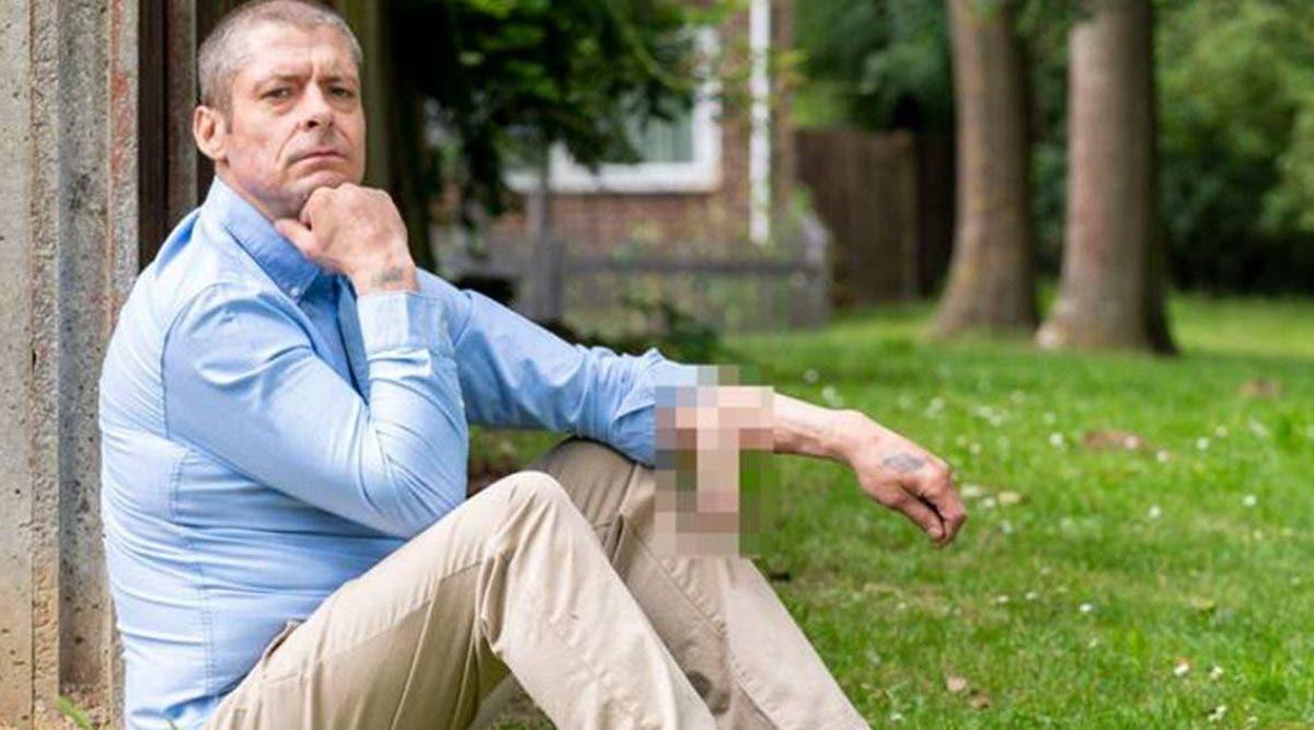 lhomme-qui-a-perdu-son-penis-devient-le-premier-au-monde-a-en-avoir-un-nouveau-implanter-sur-le-bras