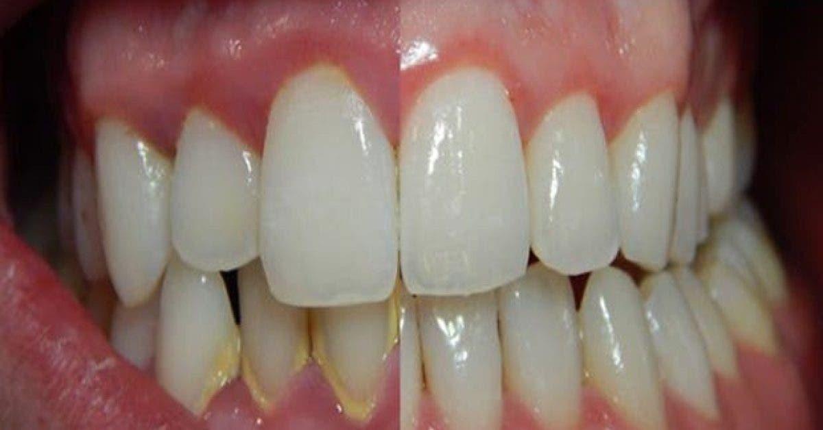 machez cet aliment pour eliminer la plaque dentaire et prevenir les caries 1