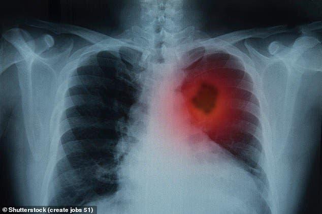 espace entre deux index pourrait révéler un cancer