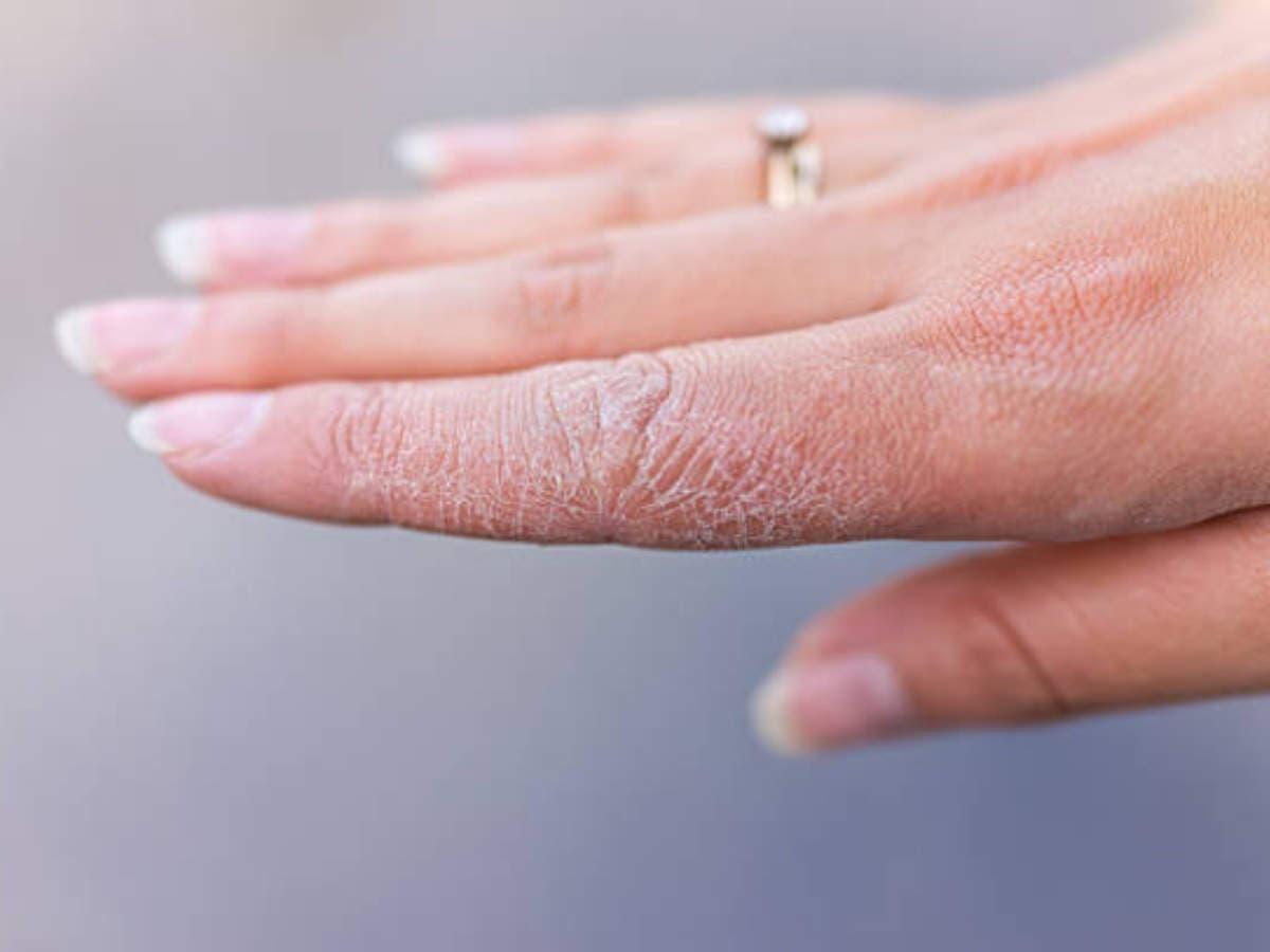 mains seches