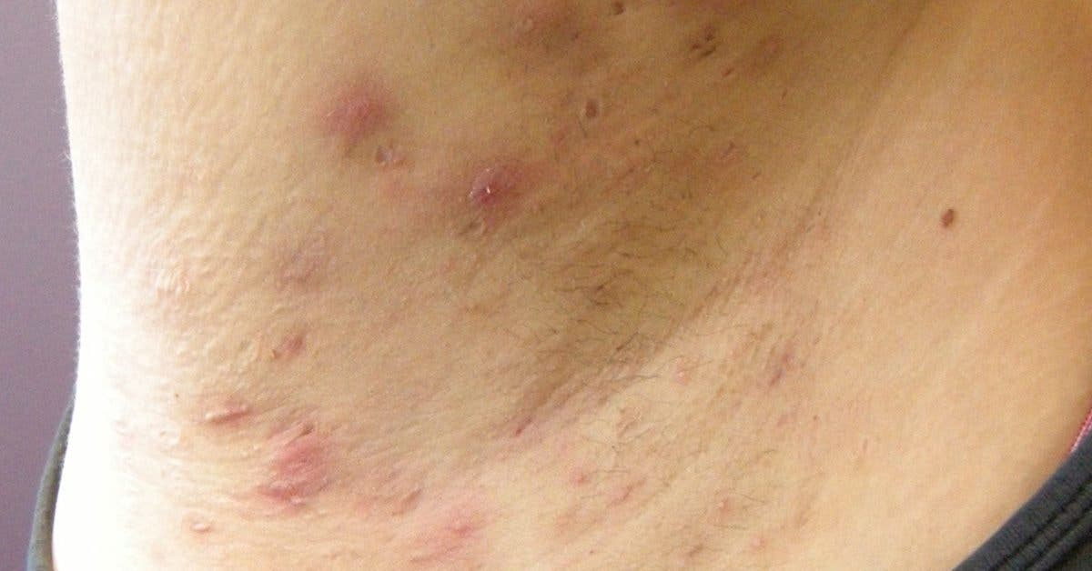 maladie-de-verneuil-hidrosadenite--cause-traitement-naturel-symptomes