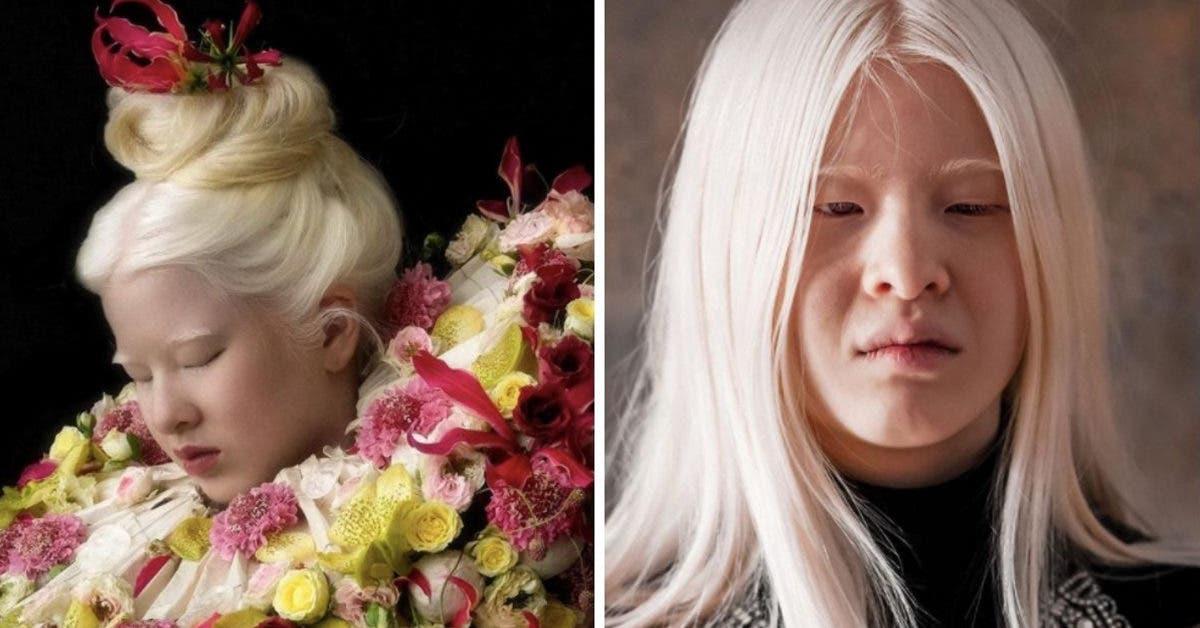 Cette fillette albinos a été abandonnée par ses parents à cause de son apparence - Aujourd'hui, elle est mannequin magazine