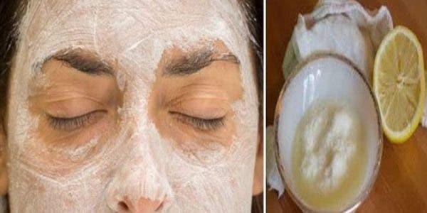 masque-au-citron-et-bicarbonate-de-soude-elimine-les-imperfections-du-visage-lacne-rajeunit-et-repare-la-peau