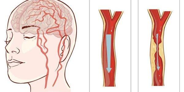 mauvaise-circulation-sanguine-quel-sont-les-symptomes