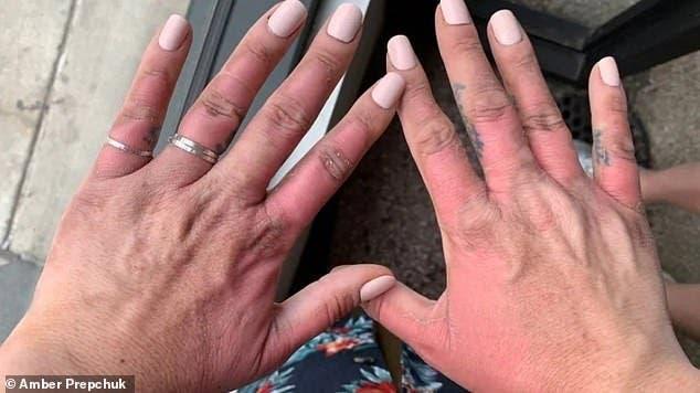 Un médecin prévient les personnes qui touchent du citron en plein soleil