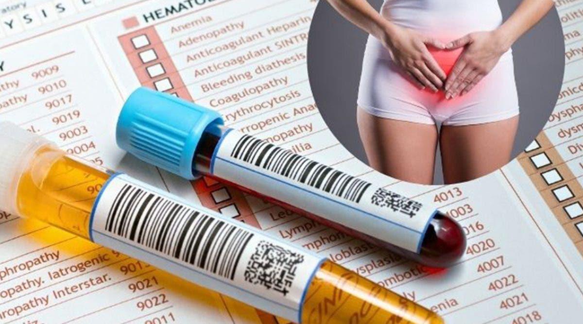 menaupose--les-symptomes-quel-test-pour-la-detecter
