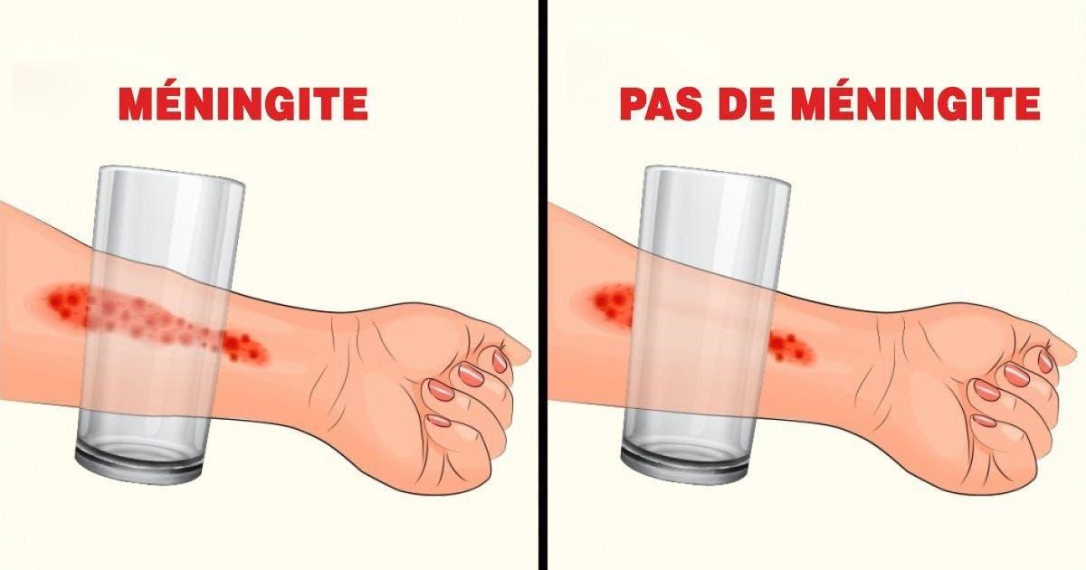 meningite8