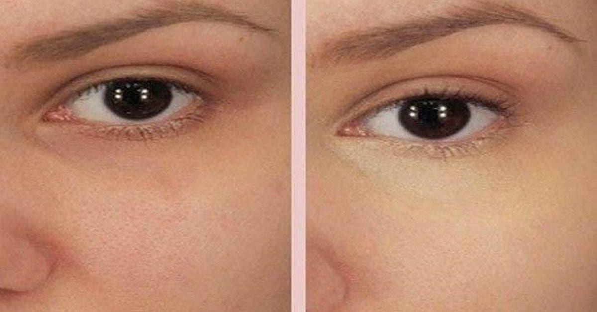 mettez cet ingredient sur votre peau pour des resultats incroyables 1