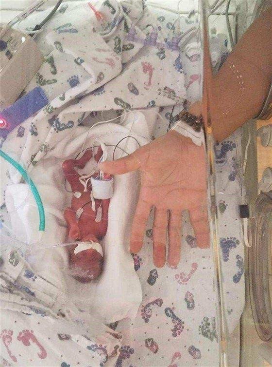 une maman donne naissance à un bébé de 500 grammes