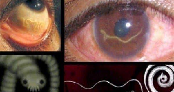 Quels parasites se trouvent dans le corps de la personne
