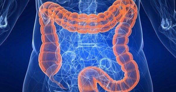 """Résultat de recherche d'images pour """"boswellia et intestins"""""""