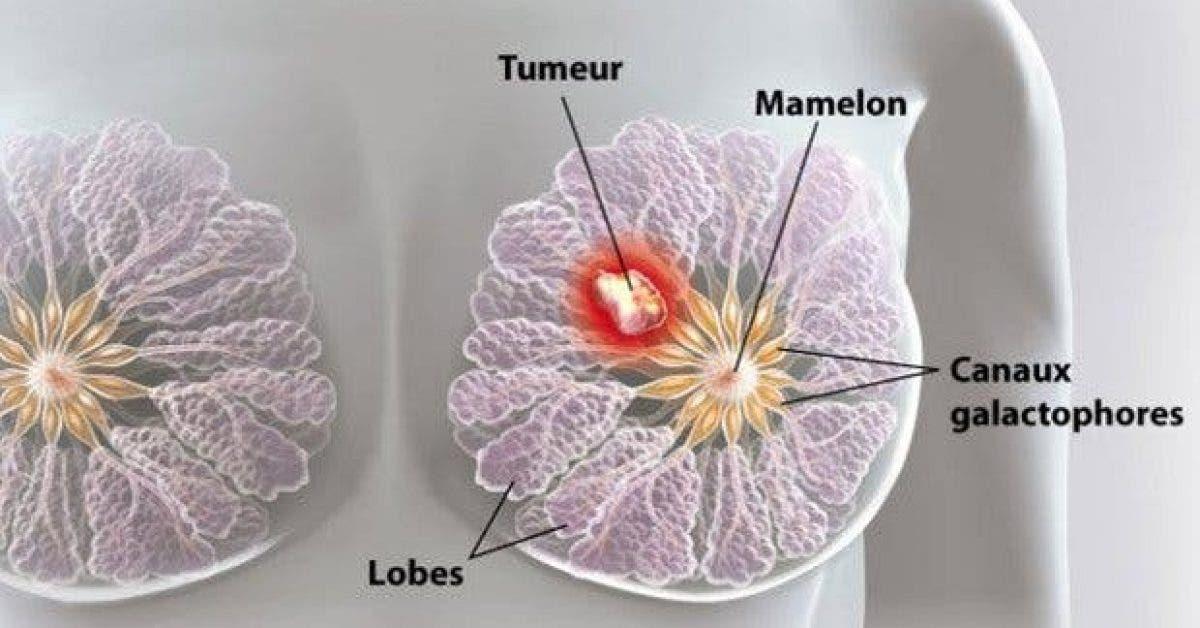 nous en buvons tous les jours mais nous ignorons quil est en grande partie responsable du cancer du sein 1