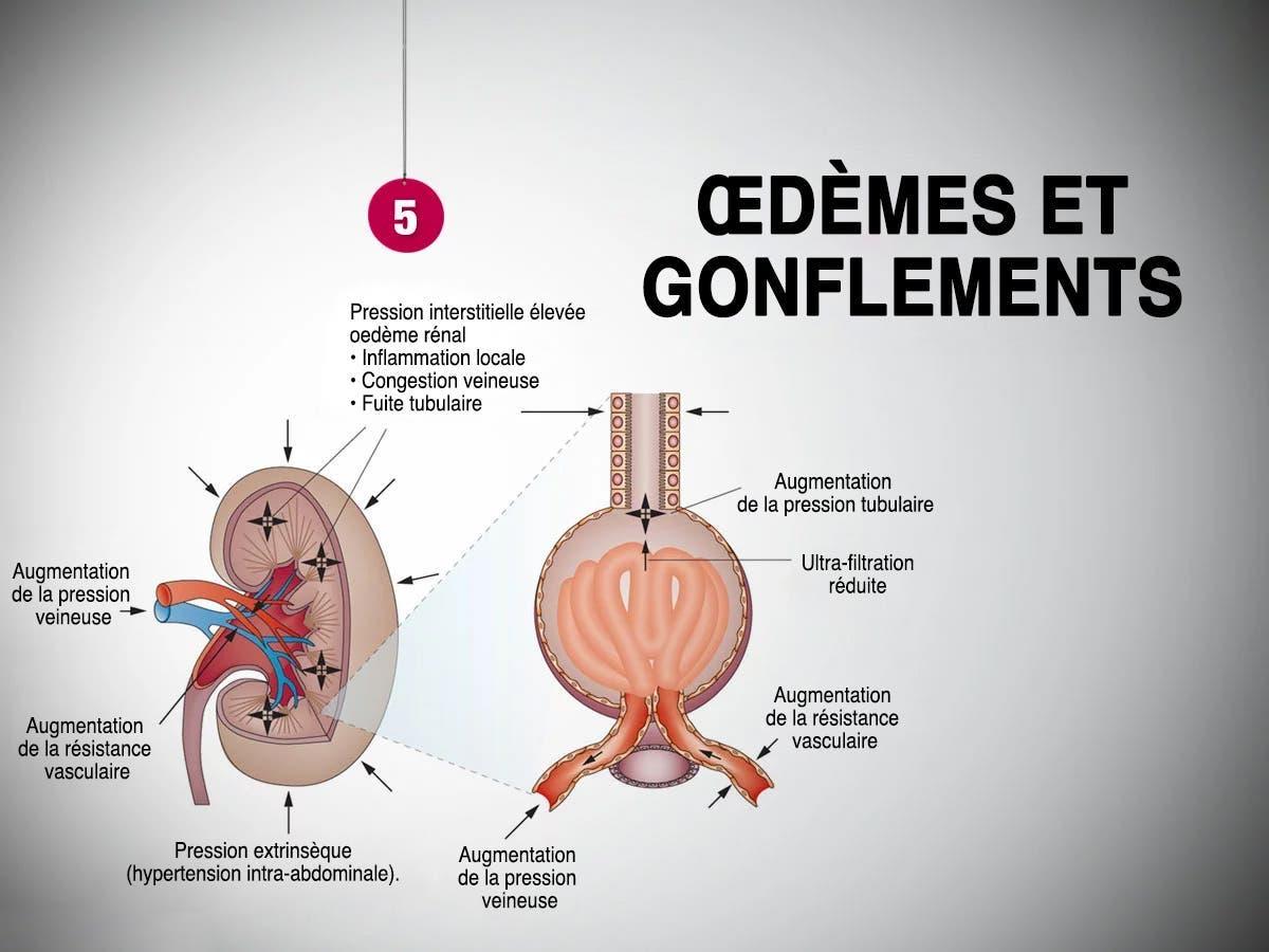 Œdèmes et gonflements