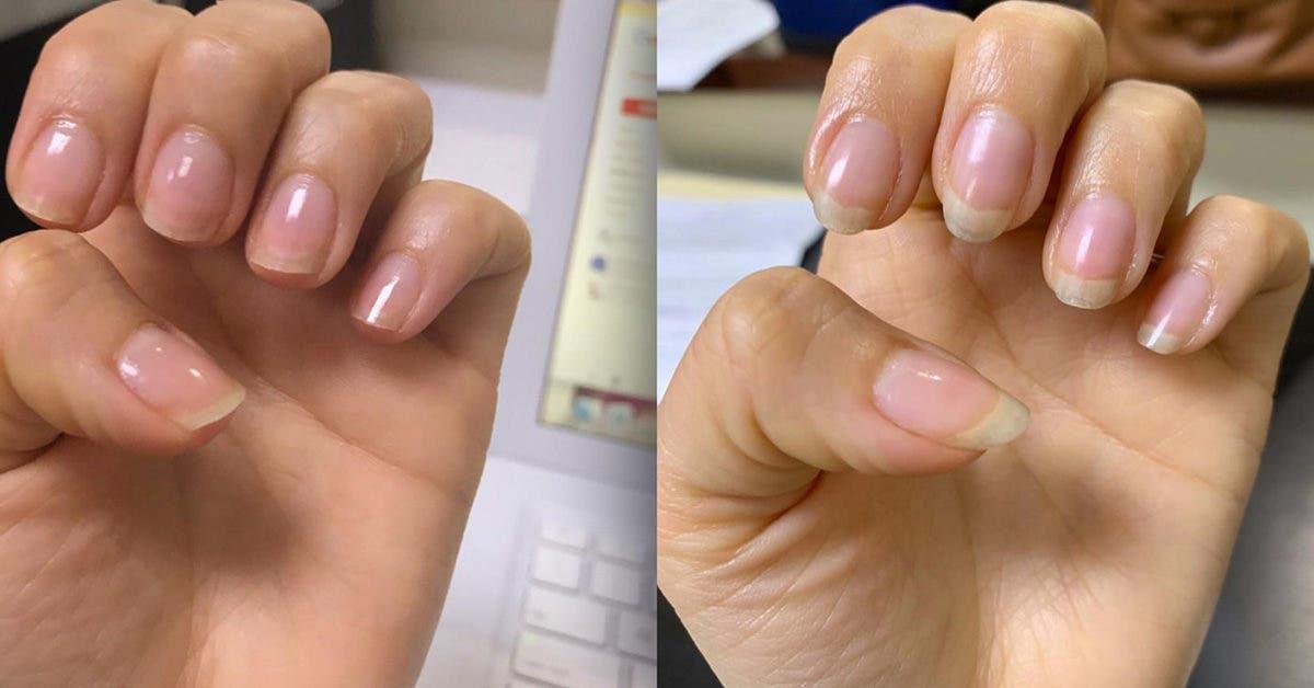 Vos ongles ne poussent pas ? 5 recettes maison pour accélérer leur croissance