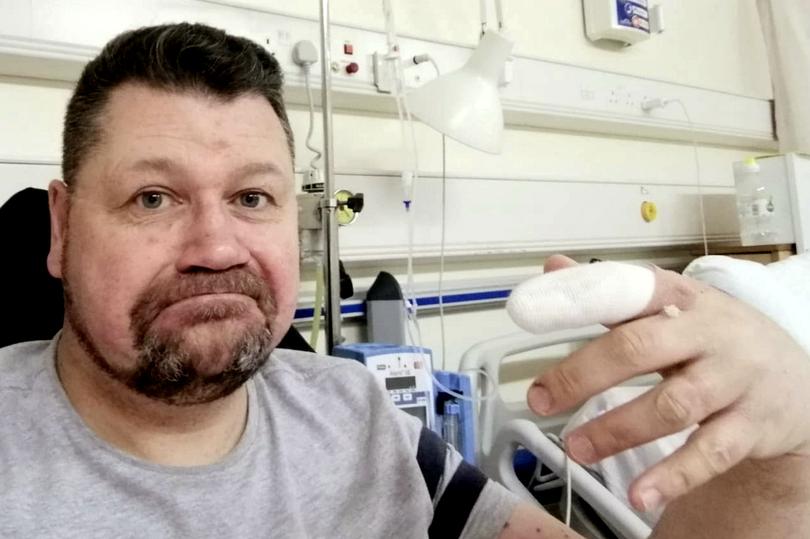 Un homme contracte une infection mortelle après avoir rongé ses ongles