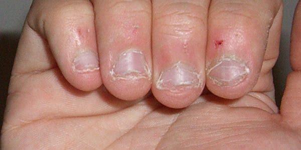 onychophagie-quels-sont-les-risques-pour-la-sante-de-se-ronger-les-ongles