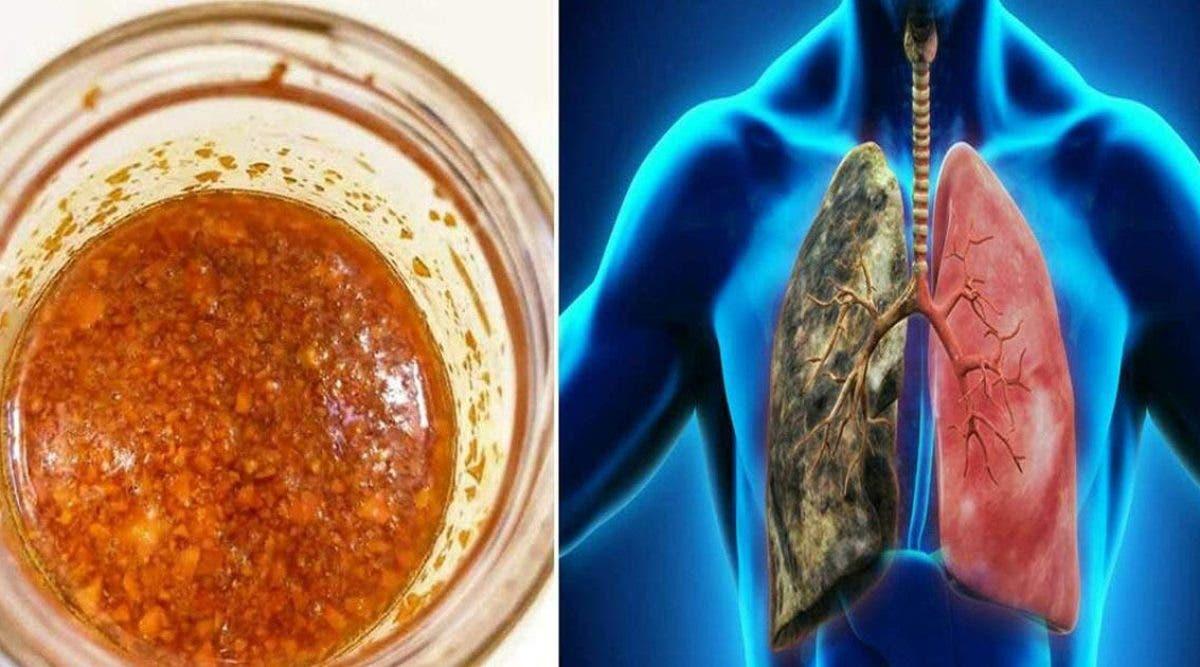oui-il-est-possible-de-purifier-les-poumons-et-deliminer-leur-inflammation-avec-ce-sirop-naturel-au-gingembre