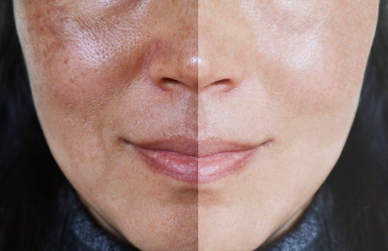 peau claire