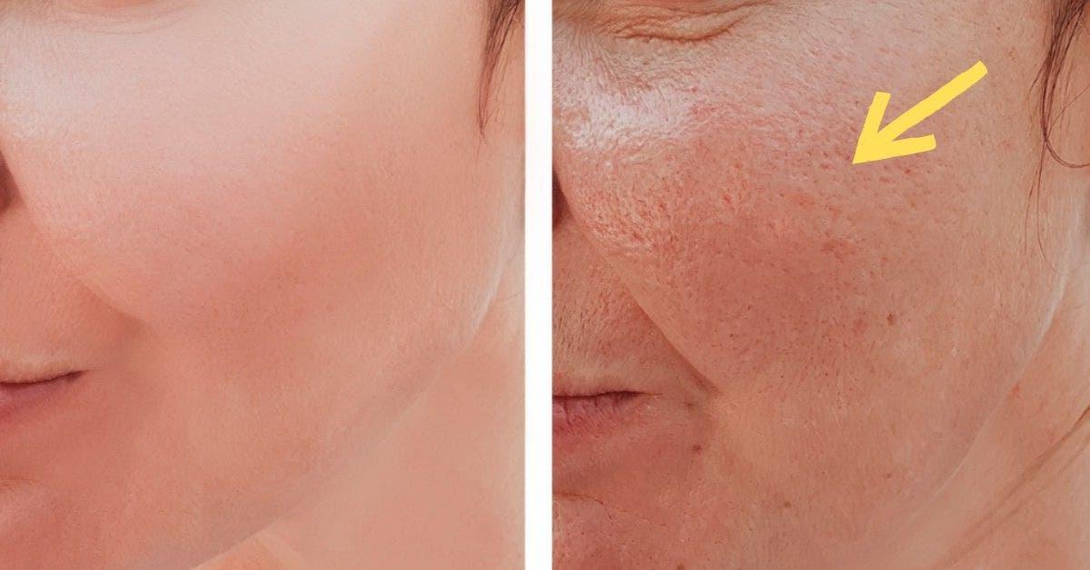 peau radieuse