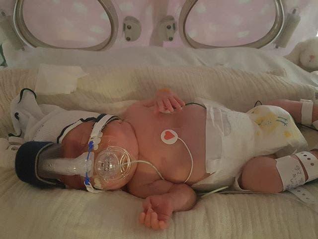 Cette petite fille prématurée de 22 semaines