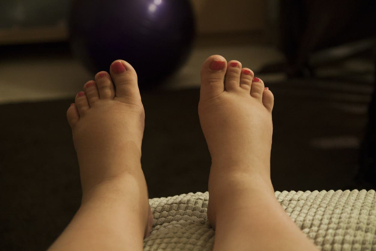 pieds gonfles