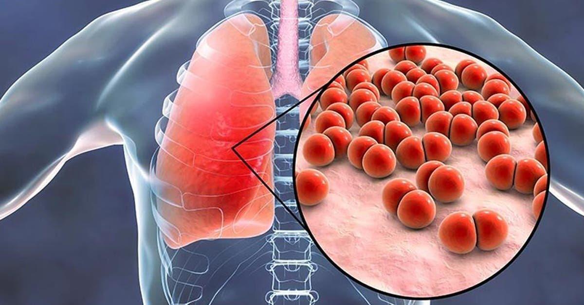 Qu'est-ce que la pneumonie atypique et quels en sont les symptômes ?