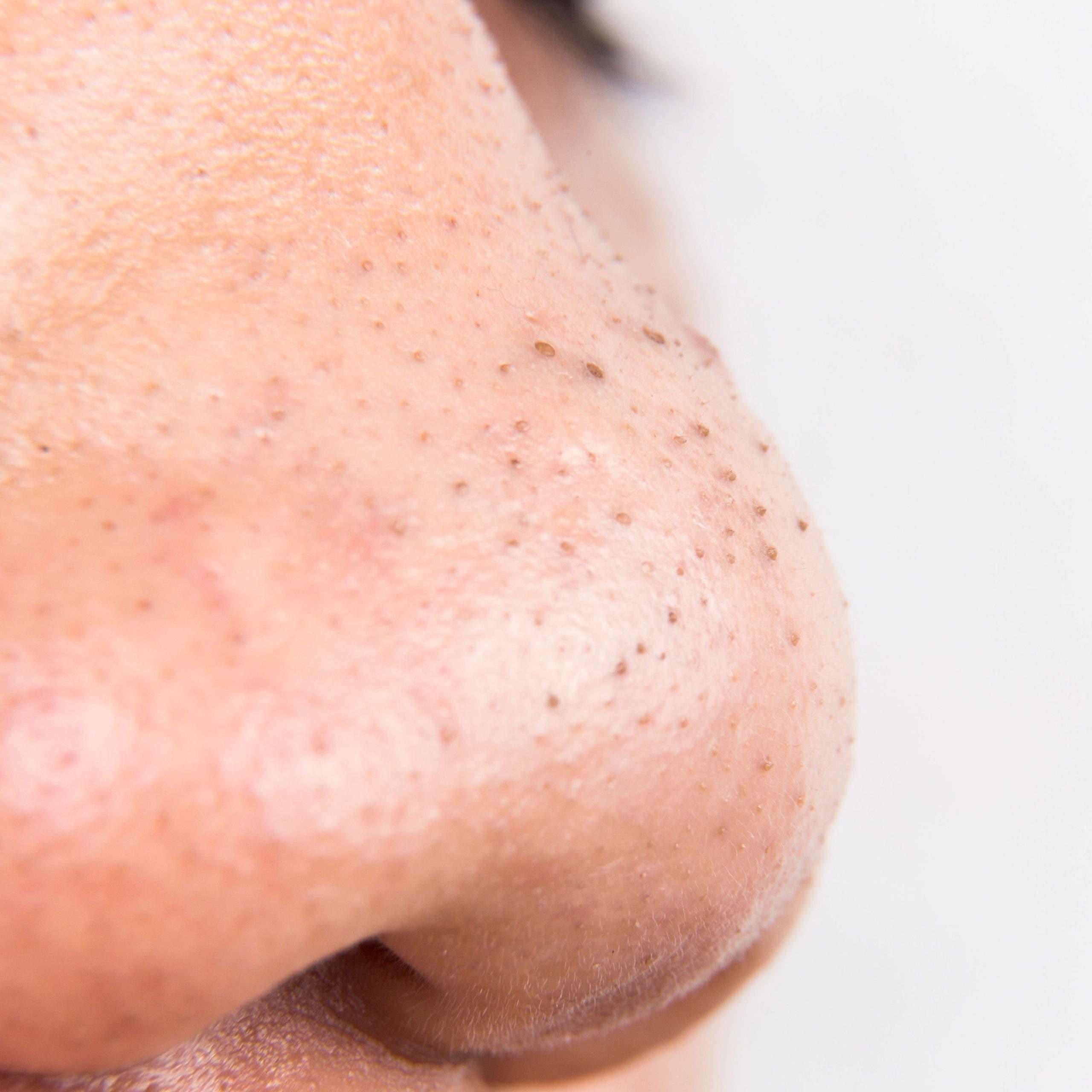 points noirs nez