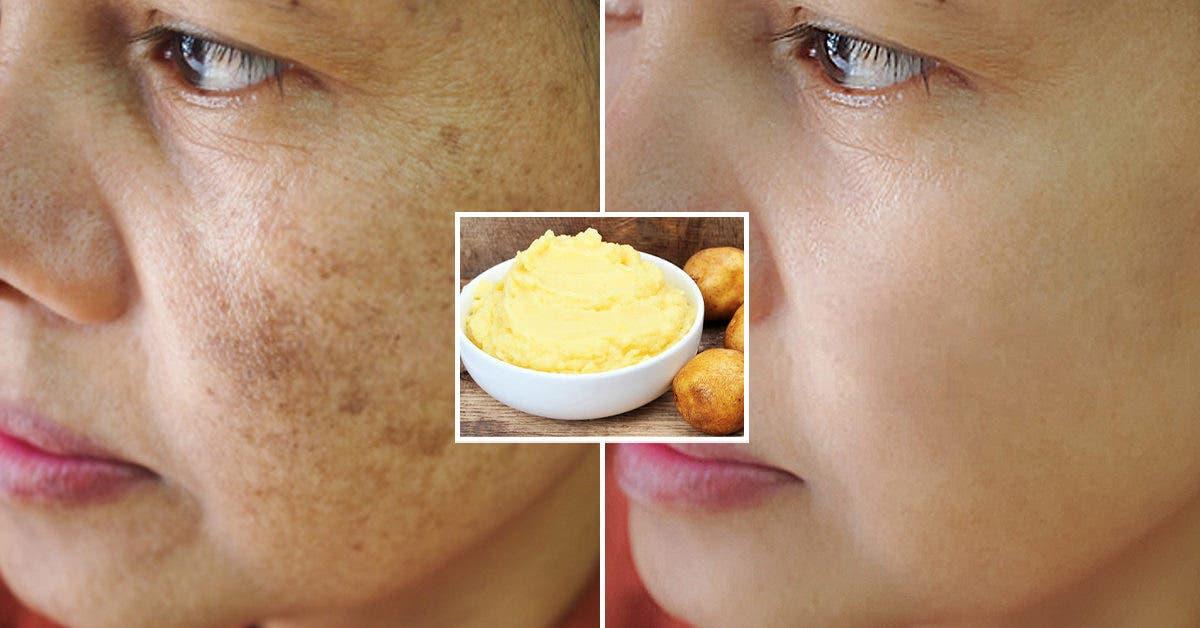 Ce masque à la pomme de terre lutte contre les imperfections et adoucit la peau