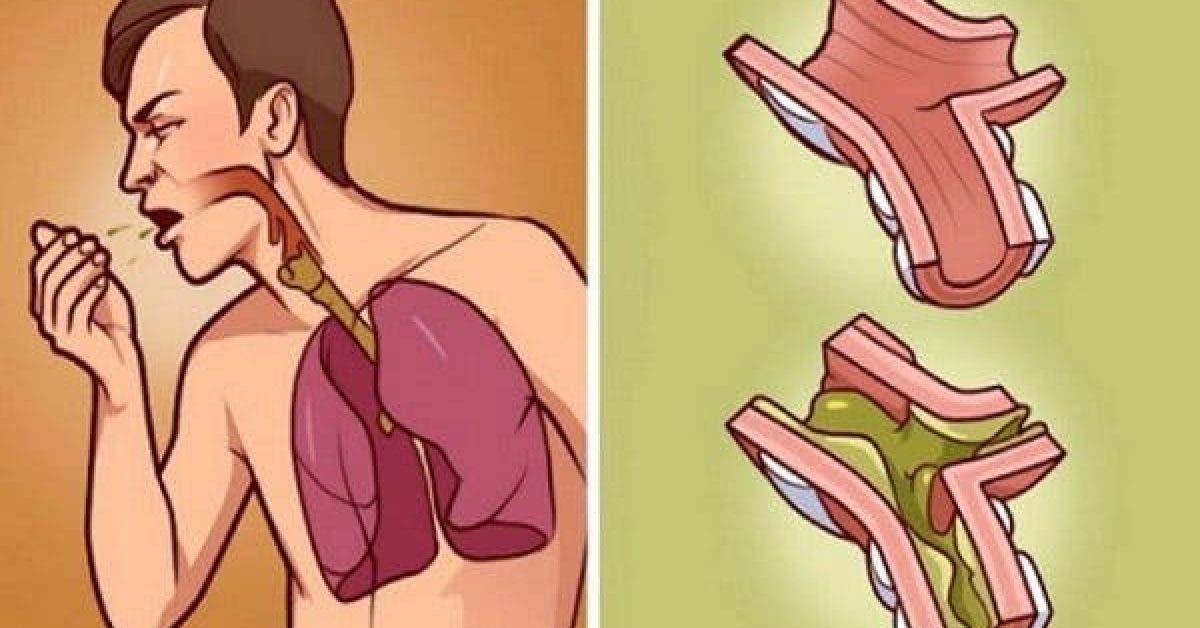 poumons se noient dans le mucus