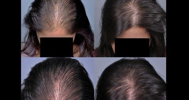 Pousse de cheveux rapide femme
