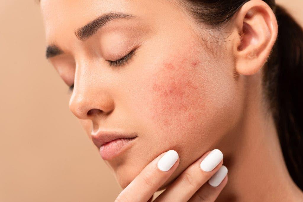 prevenir acne 1024x684 1