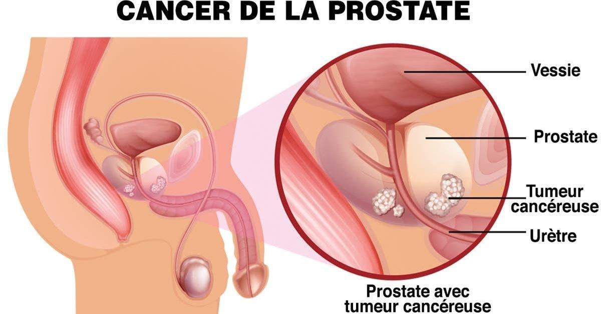 quels-sont-les-signes-du-cancer-de-la-prostate