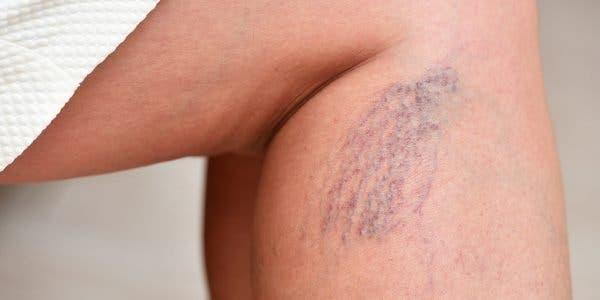 quels-sont-les-symptomes-de-la-thrombose