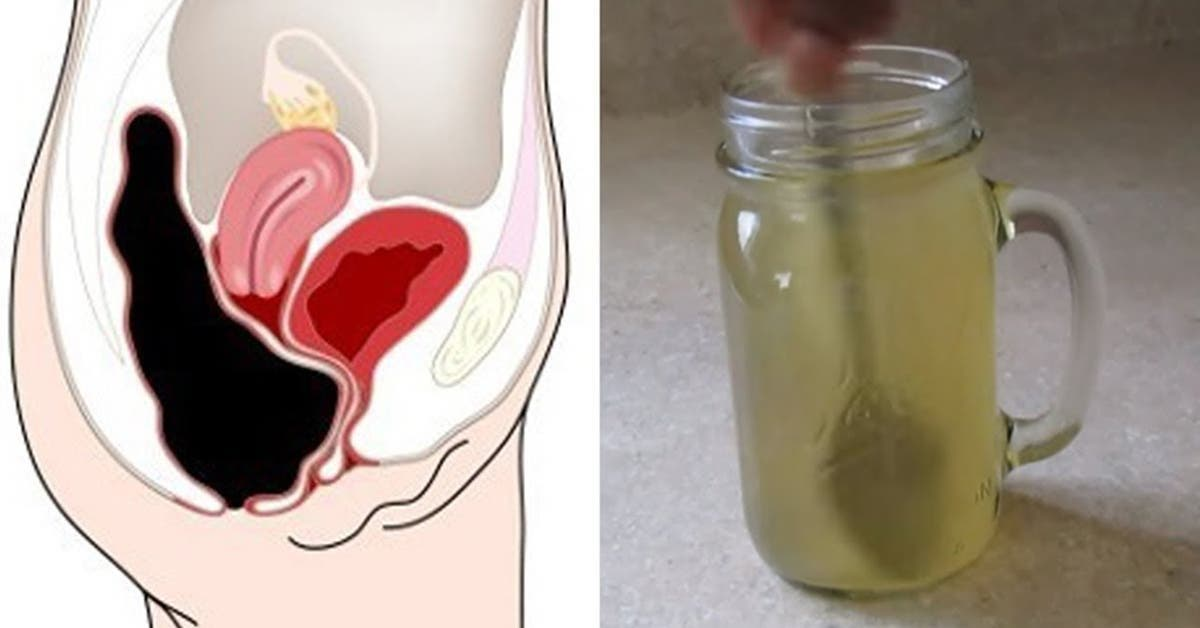 recette melangez du miel et du vinaigre de cidre pour vider votre colon des toxines 1