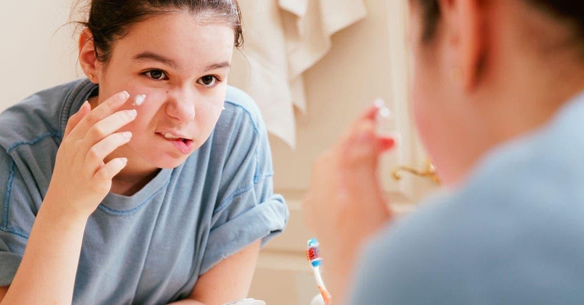 9 remèdes naturels de grands-mères pour traiter l'acné