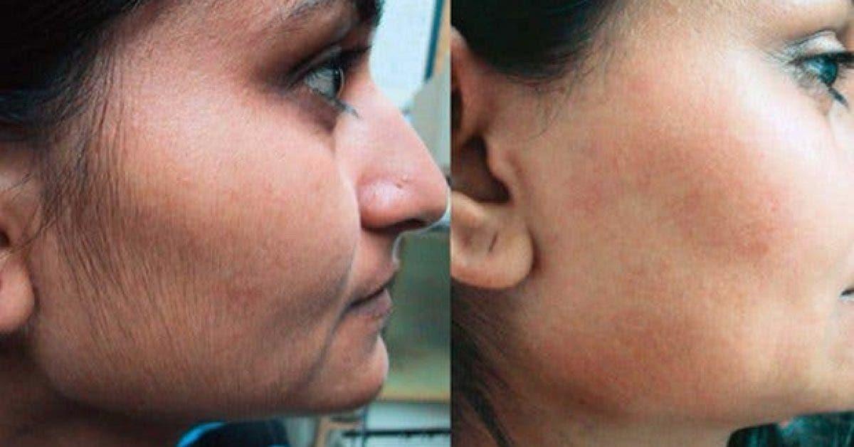 remedes naturels pour enlever les poils indesirables du visage11