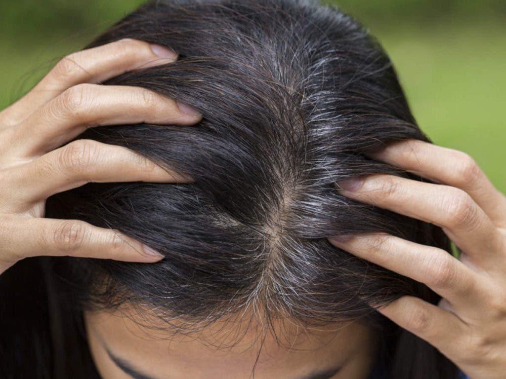 remedescheveux