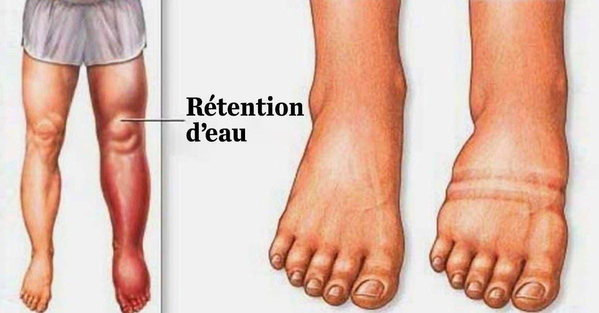 retention deau en voici la cause et comment degonfler les pieds et les jambes naturellement 1 1