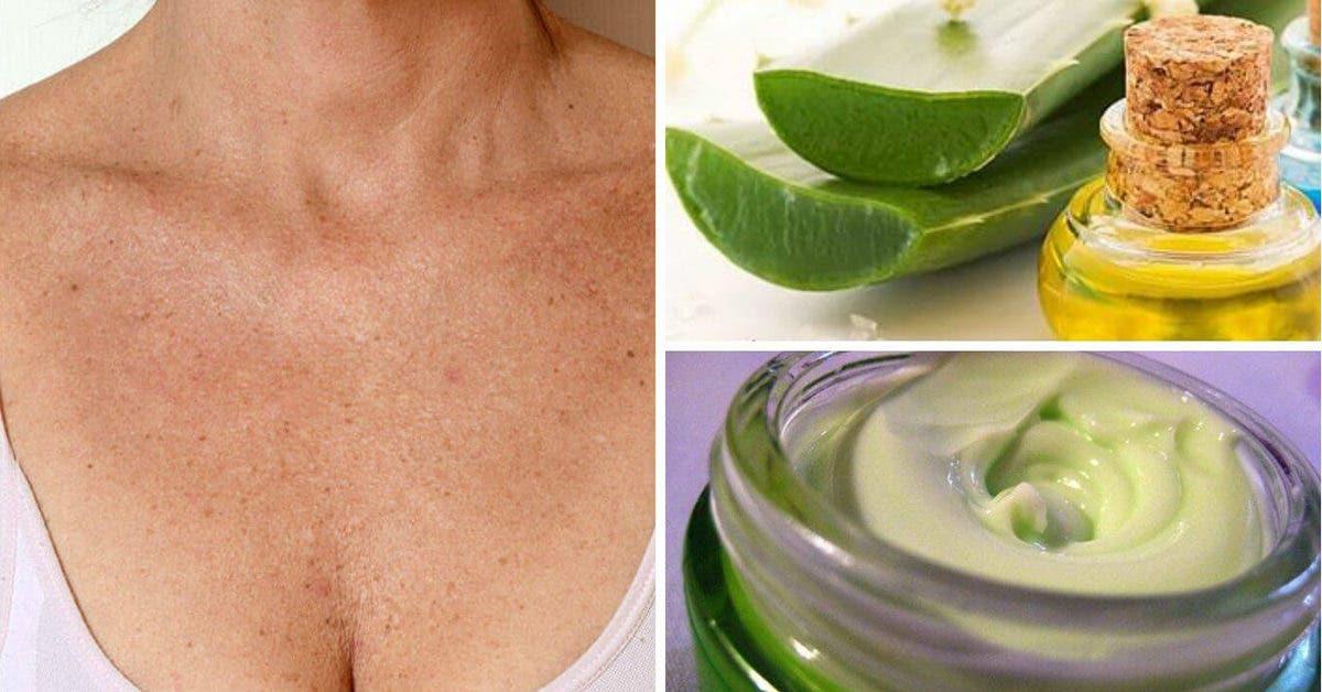 3 remèdes naturels efficaces pour éliminer les rides du cou