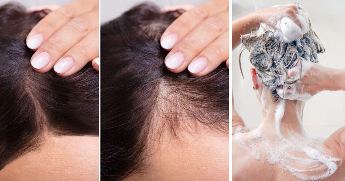 Shampooing maison à l'oignon contre la perte de cheveux (sans odeur)