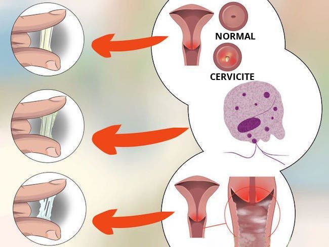 pertes vaginales